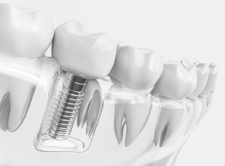 Implantologie beim Zentrum für Zahnmedizin Neusser Straße!