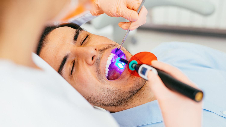 Zahnerhaltung Zahnarzt in Köln!