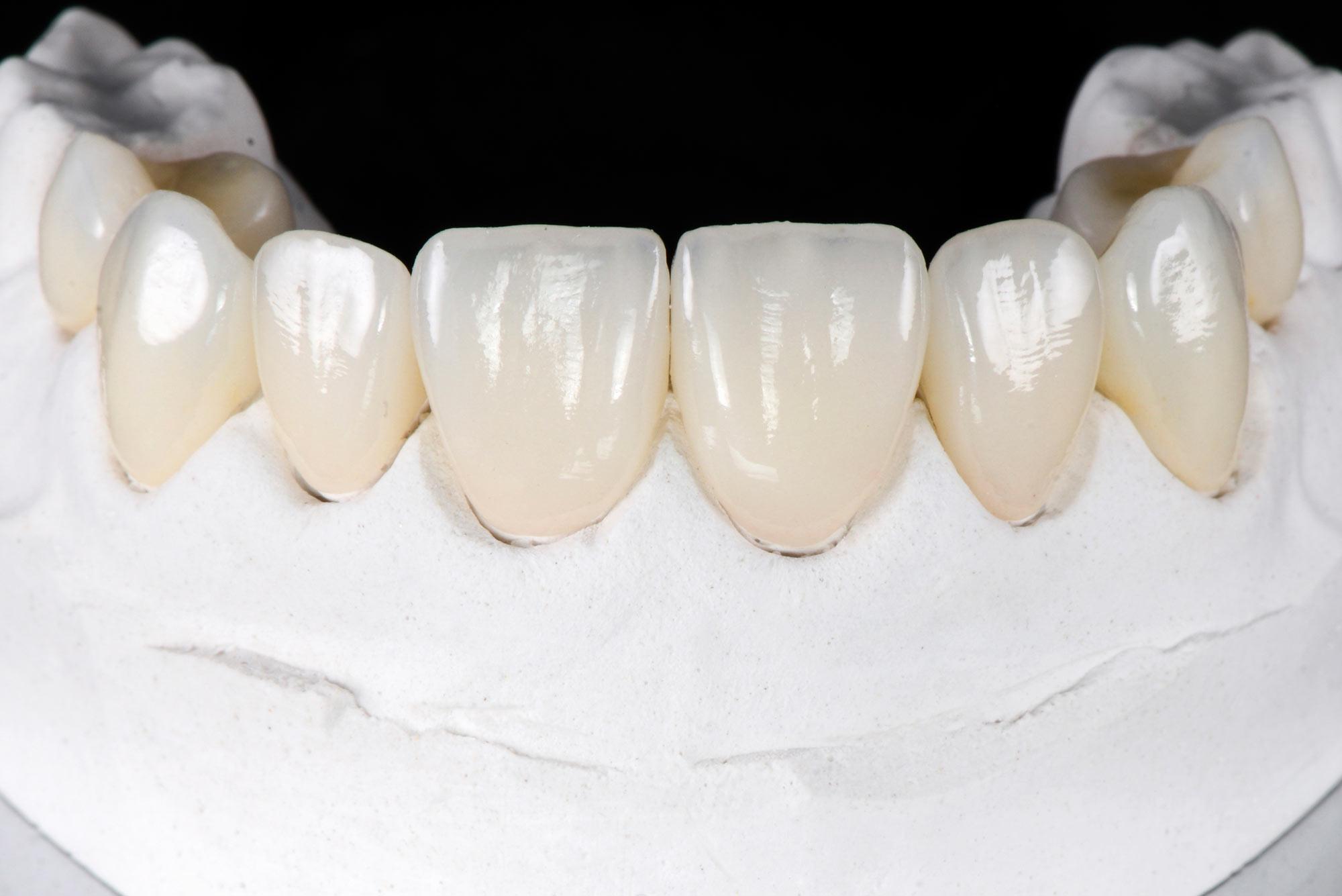 Zahnersatz im Zentrum für Zahnmedizin Neusser Straße.