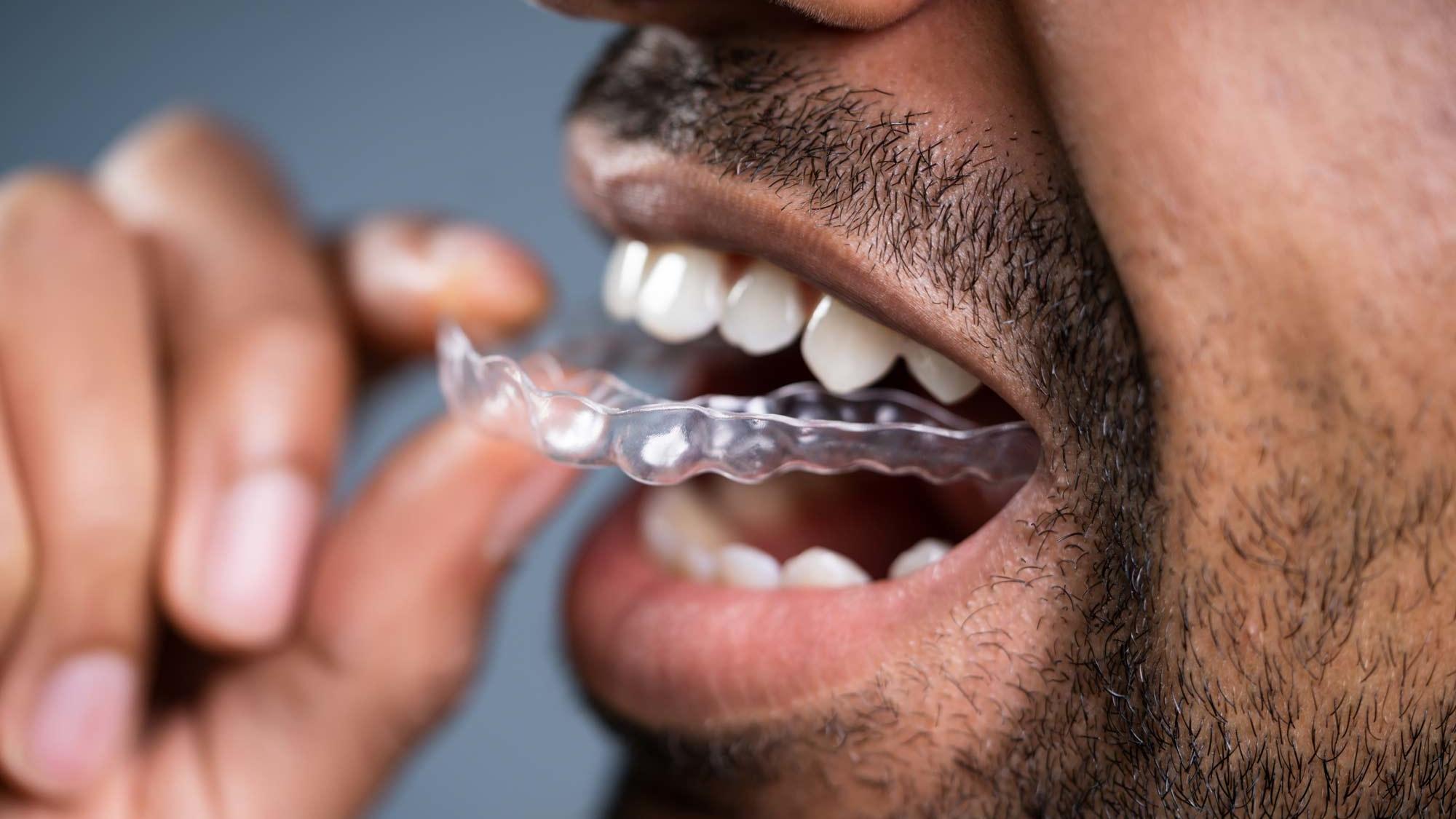 Effektiv gegen Zähneknirschen!