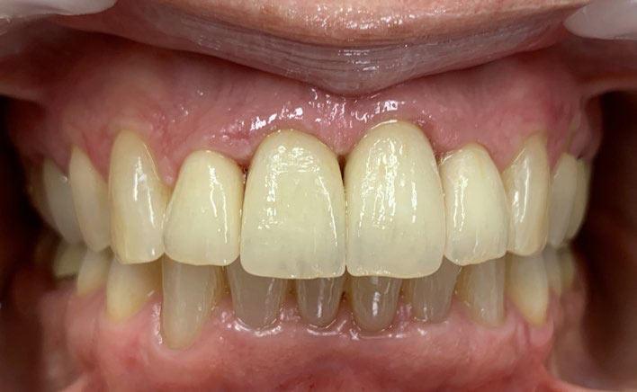Abb. 9: Abschlussfoto der ClearCorrect-Behandlung sowie der prothetischen Versorgung 12–22. Der Zahnengstand im UK wurde erfolgreich aufgelöst, sodass eine optimale Versorgung des OK möglich war. Foto: ZÄ Swantje Matthes
