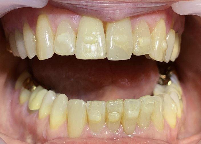 Abb. 6: Engager in situ. Sie ermöglichen bei der Alignerbehandlung zusätzliche Hebelwirkungen für besondere Zahnbewegungen. Foto: ZÄ Swantje Matthes