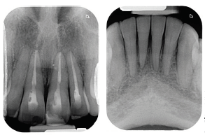 Abb. 7a+b: Kontroll-Zahnfilme der Oberkiefer- und Unterkieferfront vor Präparation. Foto: ZÄ Swantje Matthes