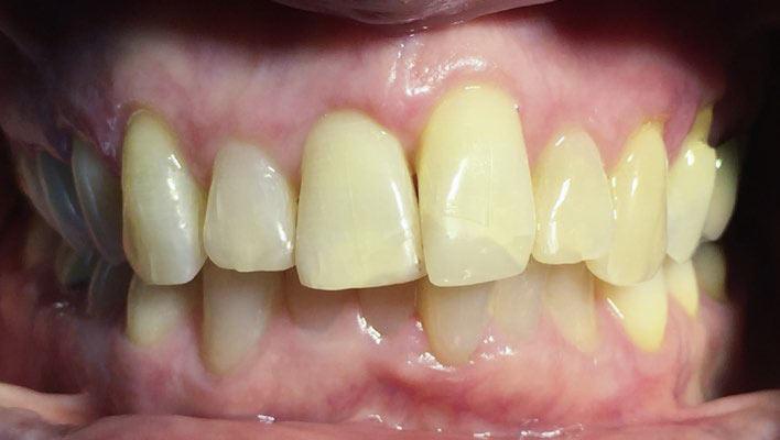 Abb. 1: Klinische Ausgangssituation. Nach Zahntrauma endodontisch versorgte Zähne 11–22. Die Zähne 12–22 sollten prothetisch versorgt werden.