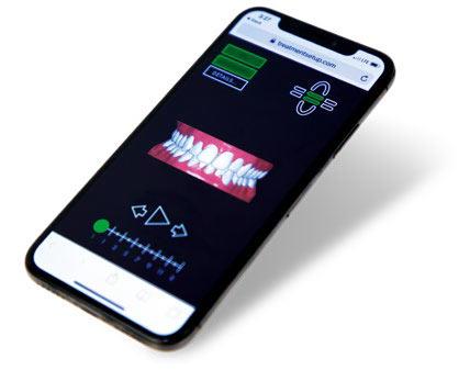 Abb. 4: Das Zielbild als Vorschau auf dem Mobiltelefon: Jede Fallplanung beinhaltet eine mobiloptimierte 3-DSimulation, die per E-Mail an den Patienten versendet werden kann. Foto: Straumann Group
