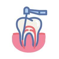 Endodontologie Zahnarzt Köln - Zentrum Für Zahnmedizin Neusser Str.