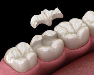 Inlays und Onlays im Zentrum für Zahnmedizin Neusser Straße in Köln. Ihr Zahnarzt Team!