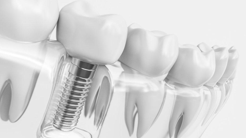 Implantologie und Zahninplantate beim Zentrum für Zahnmedizin Neusser Straße in Köln Nippes!